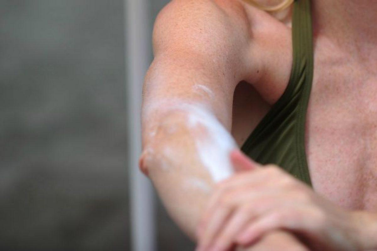 Macchie Di Unto Sulla Pelle macchie sulla pelle: come schiarire ginocchia e gomiti con i