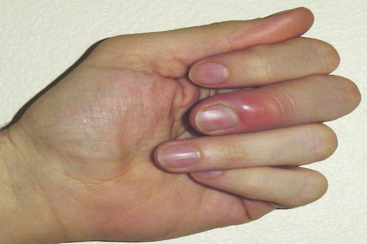Infiammazione delle dita, cause e rimedi naturali