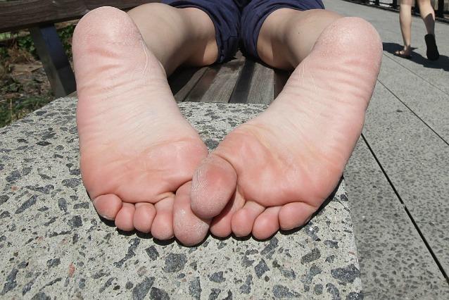 Bruciore ai piedi