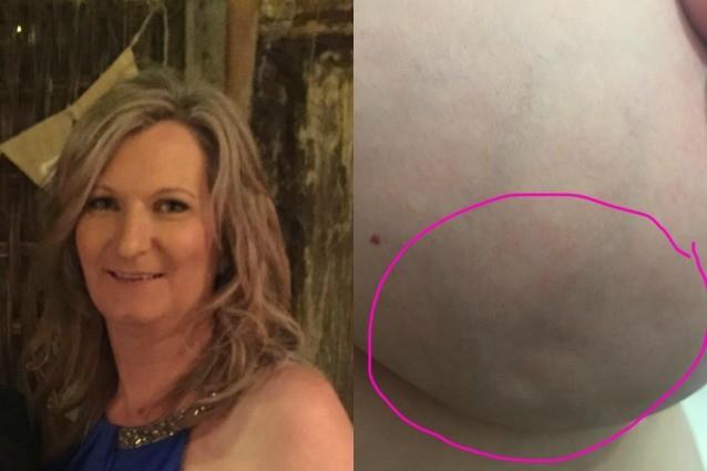 """Condivide la foto del suo seno sui social: """"Ecco come ho scoperto di avere il cancro"""""""