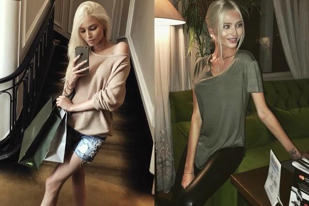 """La modella posta le foto sui social e scatena le polemiche: """"E' troppo magra"""""""