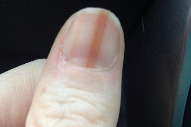Ricorre alla manicure in gel, le compare un melanoma sull'unghia