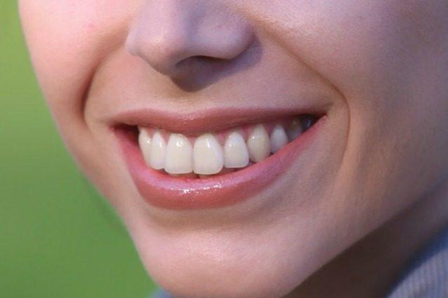 Un foglio di alluminio sui denti: il rimedio naturale per sbiancarli