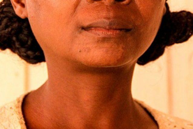 """Le cure contro il cancro stanno rendendo la sua pelle bianca: """"Ho perso la mia identità"""""""