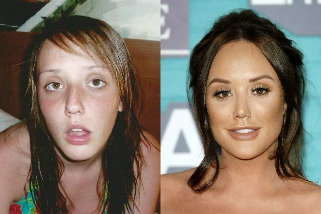 """Charlotte Crosby ieri e oggi: come è cambiata la star di """"Georde Shore"""""""