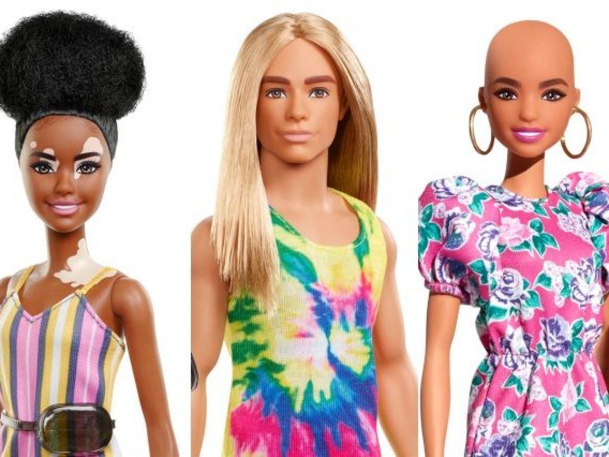 Barbie calva e con la vitiligine, Ken con i capelli lunghi