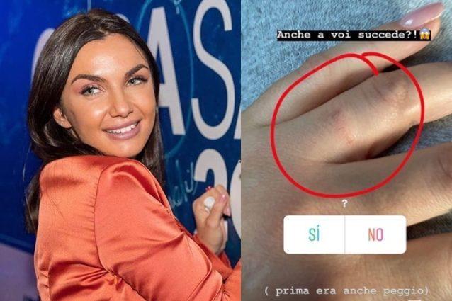 Elettra Lamborghini, incidente con l'anello di fidanzamento: