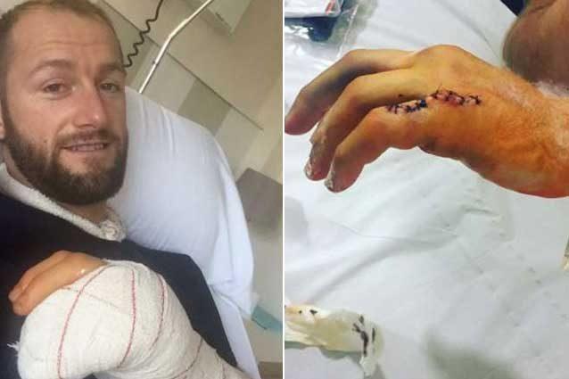 Tom Sykes mostra la mano fratturata nella violenta caduta di Portimao / Instagram