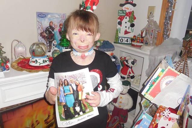 Il regalo natalizio di Beyoncé alla bambina di 8 anni sfigurata