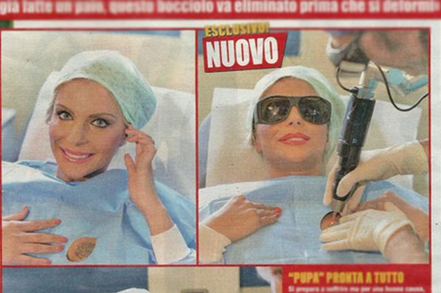 Francesca Cipriani rimuove il tatuaggio perché vuole aumentare la misura del seno