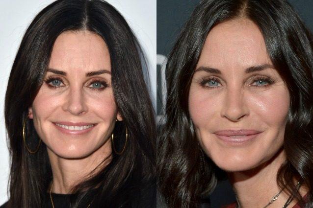 A sinistra, Courteney Cox oggi. A destra, l'attrice sfigurata dal botulino nel 2015.