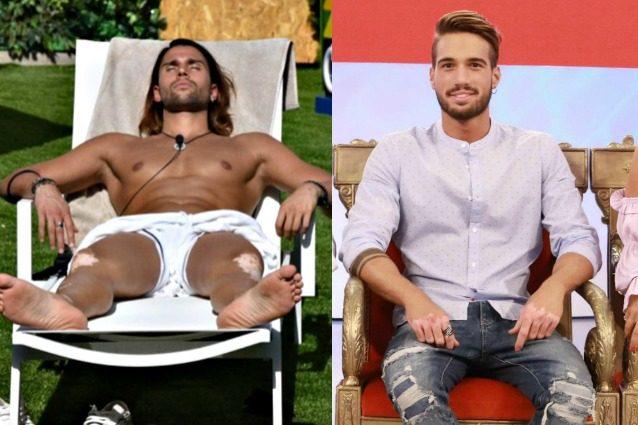 Luca Onestini come il nuovo tronista gay Alex Migliorini, al GF Vip mostra i segni della vitiligine