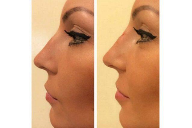Tara Gabrieletto ha rifatto il naso, le foto prima e dopo il ritocco