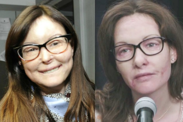 """Cristiana Capotondi è Lucia Annibali nel film tv Rai """"Io ci sono"""""""