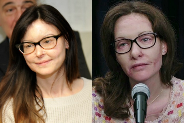 La storia di Lucia Annibali in 'Io ci sono', Cristiana Capotondi la protagonista