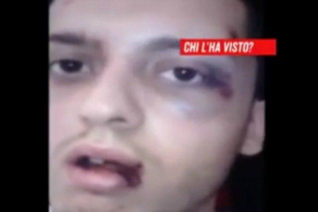Ragazzo picchiato a sangue senza motivo, il video choc di denuncia a Chi l'ha visto