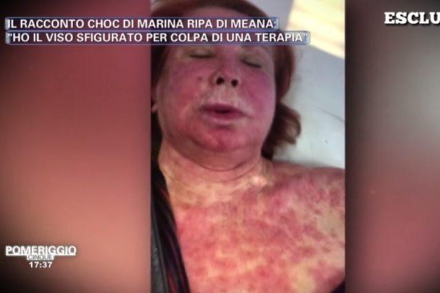 """Marina Ripa di Meana con il volto sfigurato: """"Sfregiata da una terapia contro il cancro"""""""