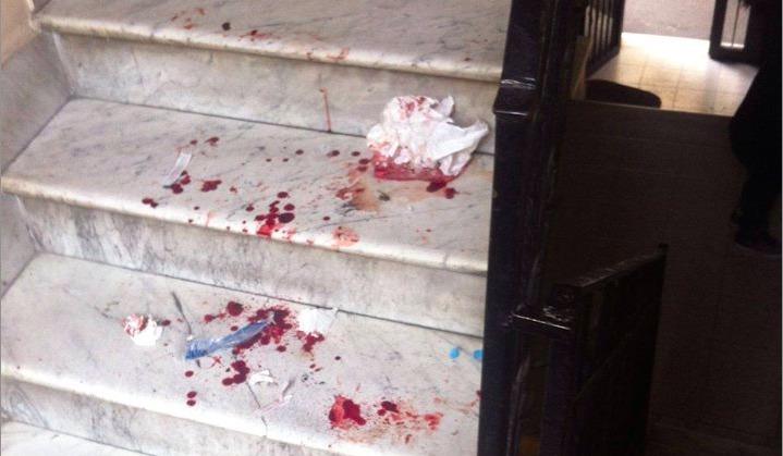 Violenza domestica a Campagnano, colpisce il figlio con un martello: arrestato 39enne