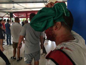 Tiburtino III, scontri tra militanti di Casapound e antifascisti: un ragazzo ferito a cinghiate