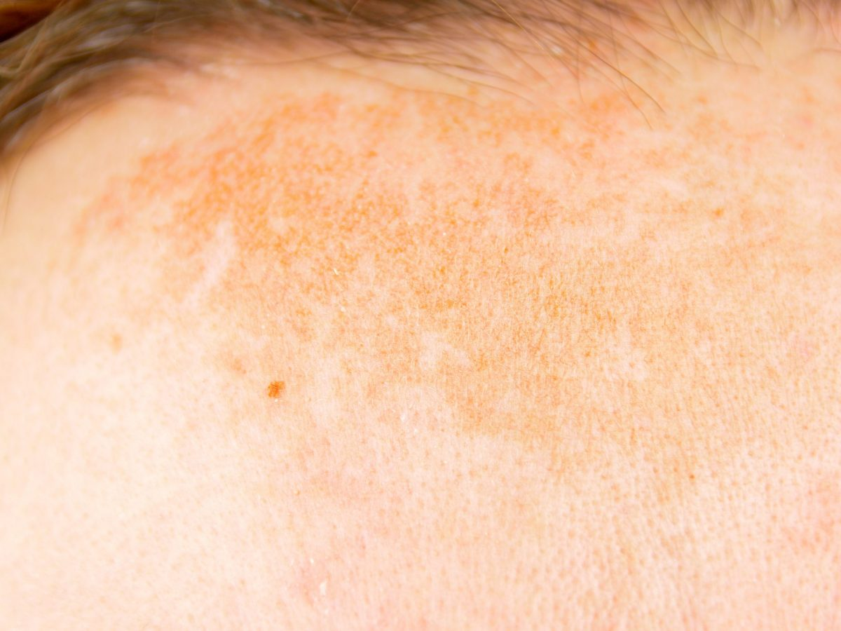 How to Remove Dark Spots on Your Face with Lemon Juice | Cookist.com