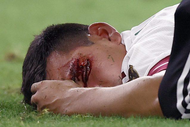 """GettyImages 1328075824 1626765075331 638x425 - """"Lozano è un miracolato"""": l'attaccante del Napoli deve ringraziare la sua buona stella"""