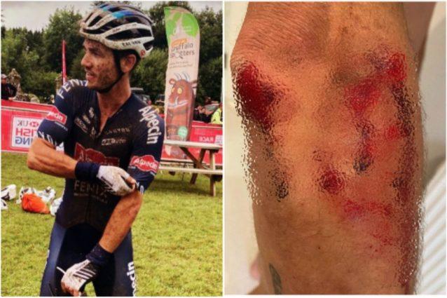 Schermata 2021 10 08 alle 11.53.11 638x425 - Investito e aggredito con un machete durante l'allenamento: l'incubo del ciclista Richardson