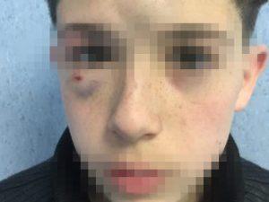 Il 13enne massacrato a Mugnano dai bulli: la denuncia su Facebook supera le 200.000 condivisioni