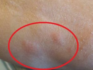 """Dopo le formiche ecco le zanzare: """"Invasione"""" all'ospedale San Giovanni Bosco"""