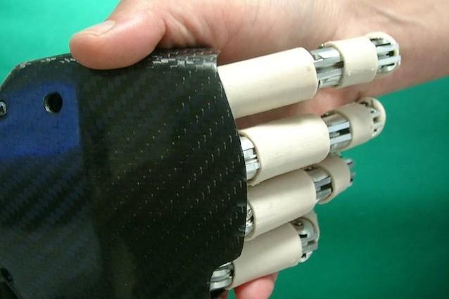 Una mano bionica low cost che non richiede interventi chirurgici