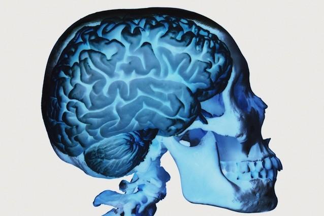 Curare l'Alzheimer proteggendo l'arginina