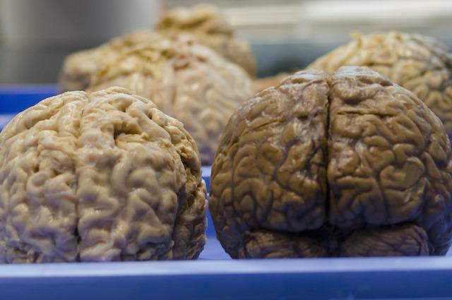 Cosa succede nel nostro cervello quando stiamo per morire?