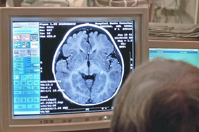 Gli ultrasuoni aprono un varco nel cervello per raggiungere i tumori