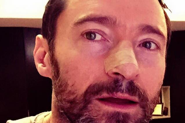Basalioma: cos'è e come si cura il tumore di cui soffre Hugh Jackman