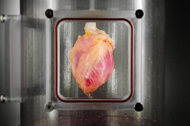Il muscolo cardiaco creato da un cuore decellularizzato e da staminali
