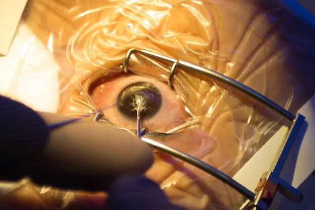 È possibile tornare a vedere grazie al trapianto di cornea di maiale?