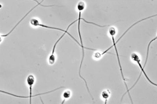 La pillola maschile impedirà agli spermatozoi di nuotare?