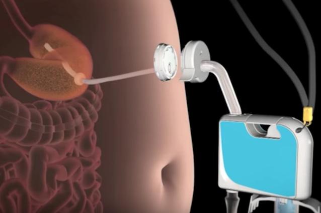 Un tubo che aspira il cibo dallo stomaco: dagli USA la dieta choc