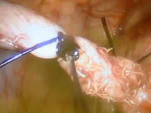 Frame dell'operazione che mostra l'appendice infestata dai vermi.
