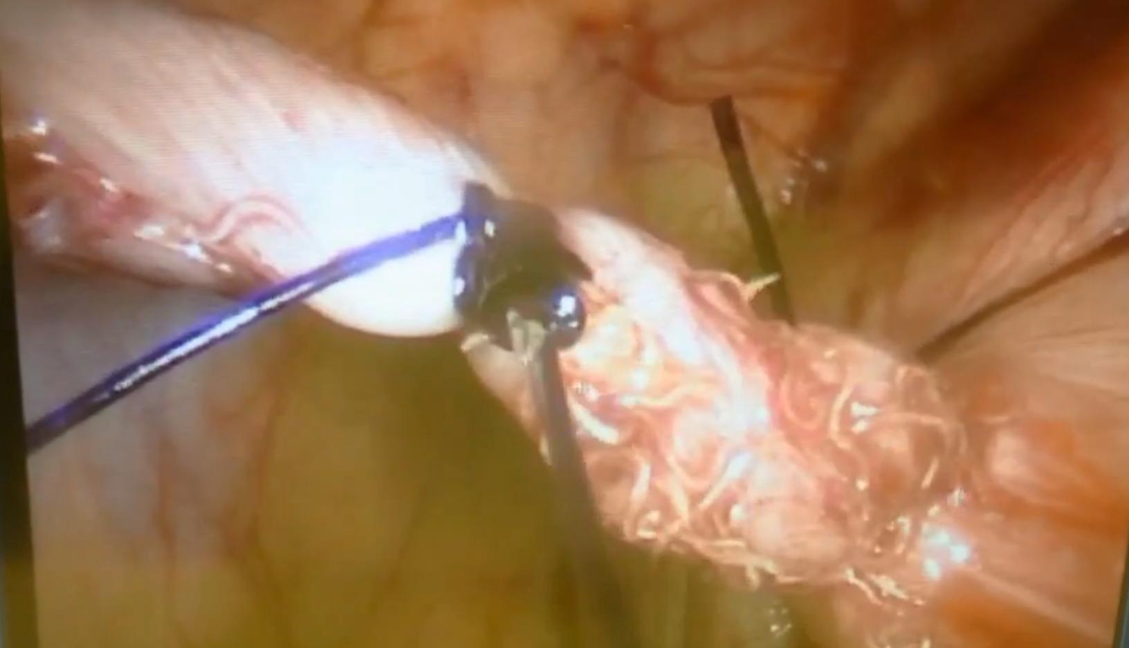 Il programma di Elena Malysheva è emozionante vivere su parassiti - Parassita in caviale di picca