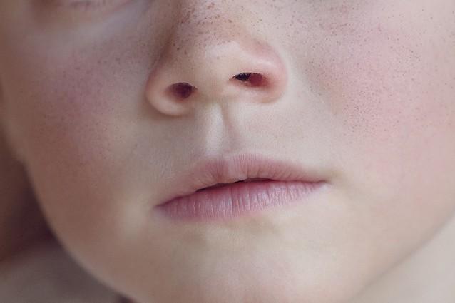 Trovato nel nostro naso un nuovo super antibiotico non resistente ai farmaci