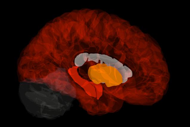 Scoperta la firma genetica all'origine dell'Alzheimer