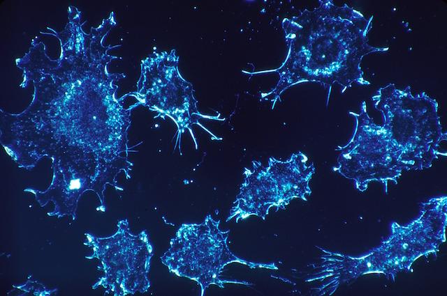 Riduce del 40% il rischio di morte: cos'è la molecola nemica del cancro ai polmoni