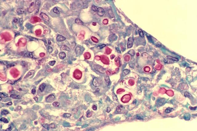 1,5 milioni di morti ogni anno per infezioni da funghi, più del cancro al seno e dell'HIV