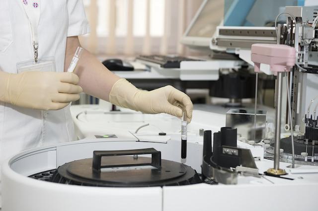 Distrugge il 98% dei ceppi di HIV: chi è l'anticorpo N6 che potrebbe sconfiggere l'AIDS