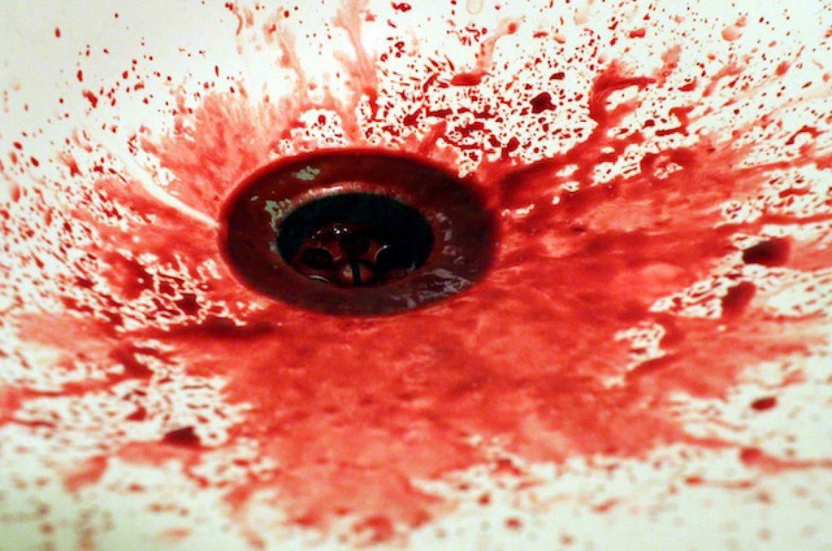 Contatto sessuale: rapporti vaginali, anali, oro-genitali praticati e contatto diretto tra genitali non Fa fatto presente che esistono delle procedure, partner notification e contact tracing, che consentono D.