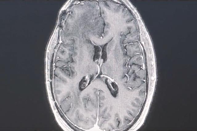 Può sconfiggere il cancro al cervello: come funziona il nuovo trattamento di immunoterapia