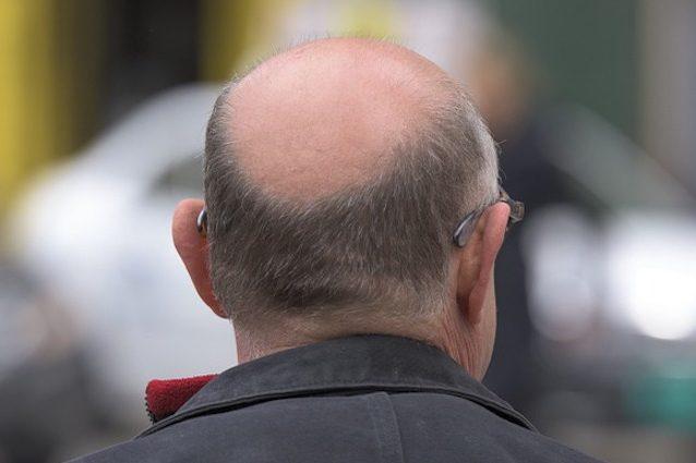 L'insulina contro la perdita dei capelli: ecco come contrasta la calvizie