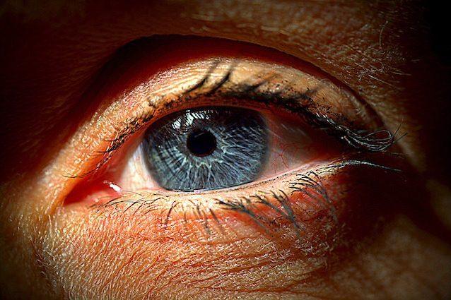 Danneggia gli occhi di 1 milione di italiani, ma solo la metà lo sa: cos'è il glaucoma