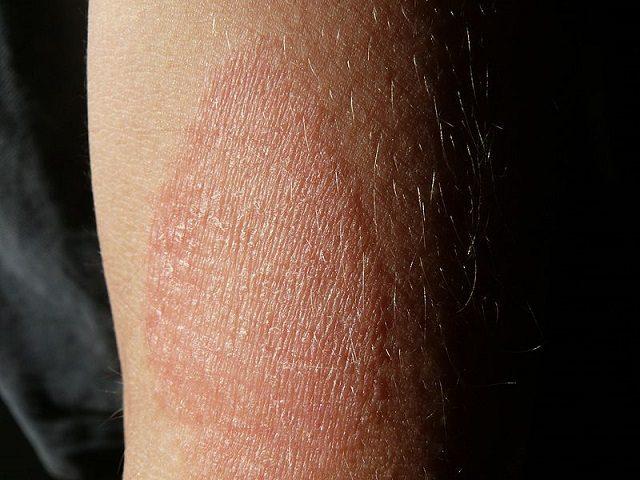 Dermatite atopica: cos'è, quali sono i sintomi e come si cura questa malattia della pelle