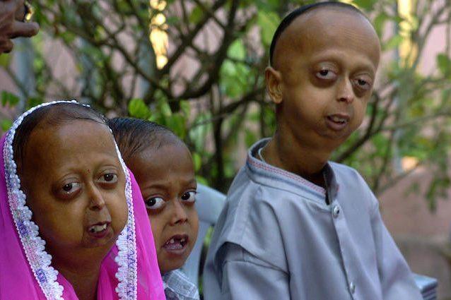 Progeria, la malattia dei bimbi che sembrano anziani: cos'è, i sintomi e perché fa invecchiare